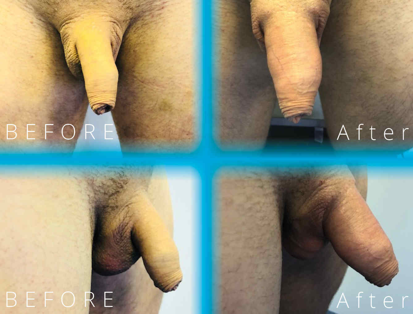 Ellanse | Before and After penis enlargement | Moorgate Andrology