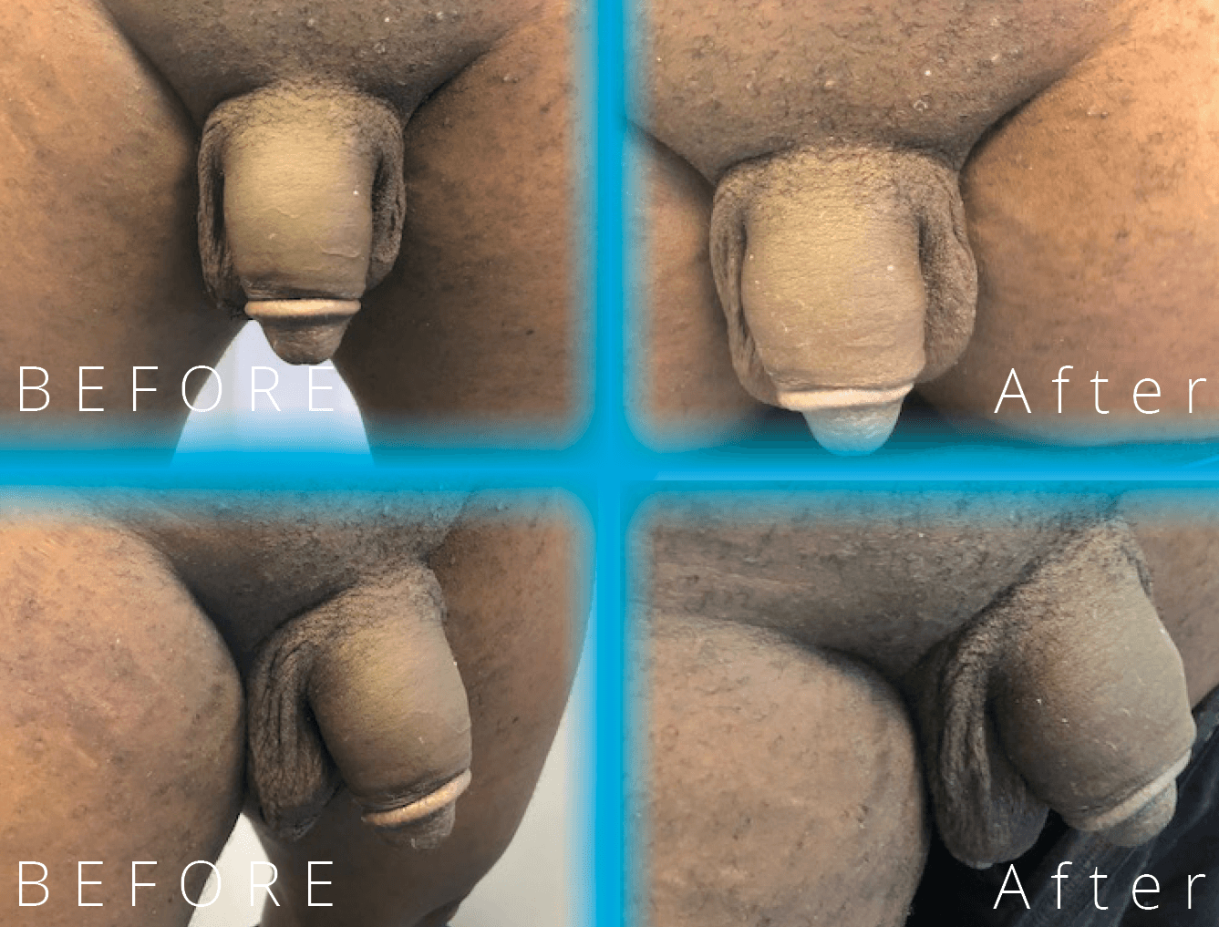 HA | Before and After penis enlargement | Moorgate Andrology