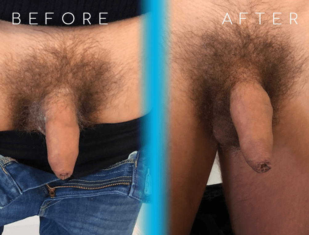 10ml HA | Before and After penis enlargement | Moorgate Andrology