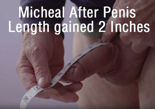 penis enlargement 2 inches gains Moorgate Andrology
