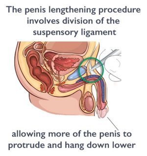 penis enlargement surgery UK - Moorgate Andrology