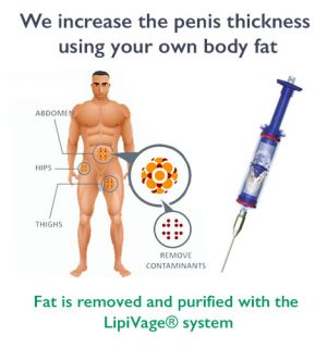 penis enlargement surgery and fillers