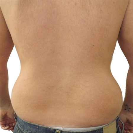 1-Liposuction-Before