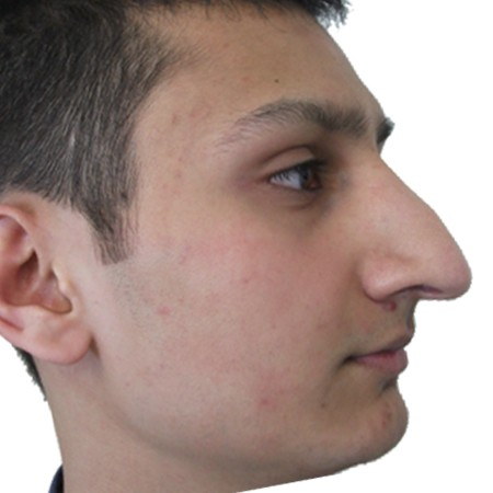 1 - Rhinoplasty-Before