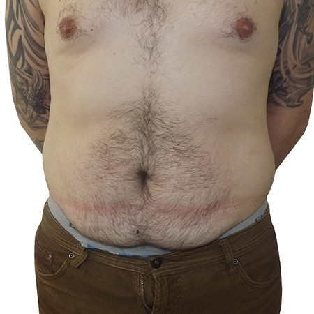 1 - Abdominoplasty - Before