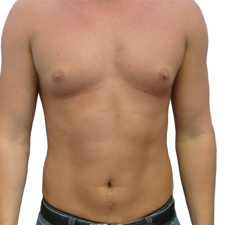 1 - Chest Reduction-Before