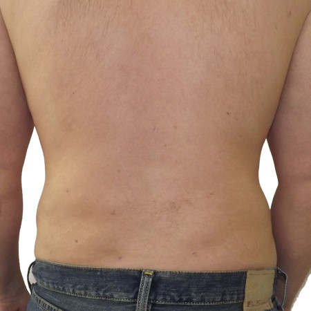 1-Liposuction-After