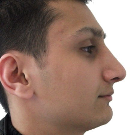 1 - Rhinoplasty-After