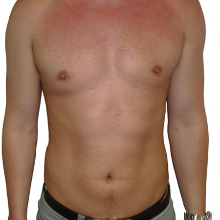 1 - Chest Reduction-After