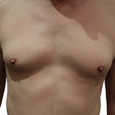 2 - Chest Reduction-Before