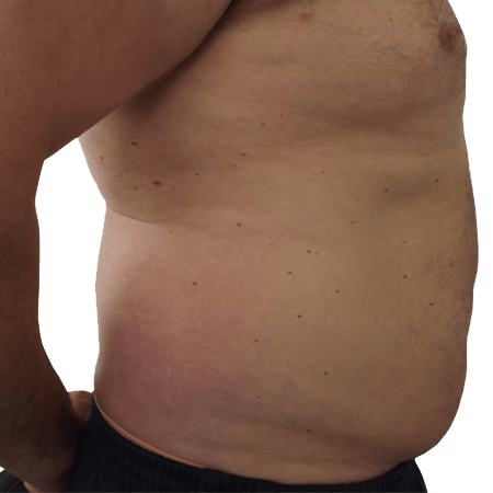 2-Liposuction-Before