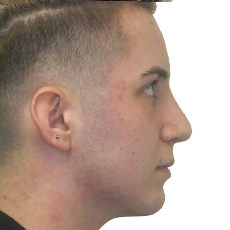 2 - Rhinoplasty-After