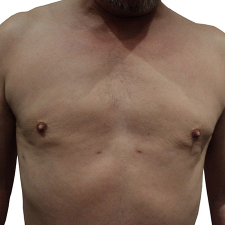 2 - Chest Reduction-After