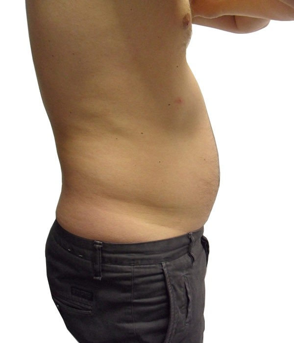 3-Liposuction-Before