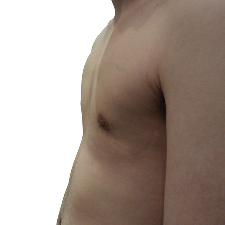 3 - Chest Reduction-After