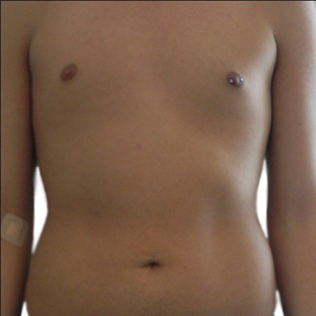 5-Liposuction-Before
