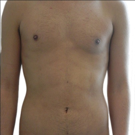 5-Liposuction-After