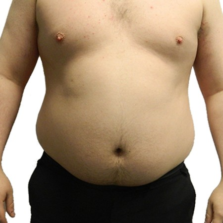 6-Liposuction-Before